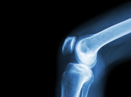 artrosis: Articulación de la rodilla de rayos x de la película con la artritis (gota, artritis reumatoide, artritis séptica, la osteoartritis de rodilla) y el área en blanco en el lado izquierdo