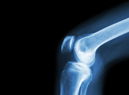 osteoarthritis: Film x-ray knee joint with arthritis ( Gout , Rheumatoid arthritis , Septic arthritis , Osteoarthritis knee ) and blank area at left side
