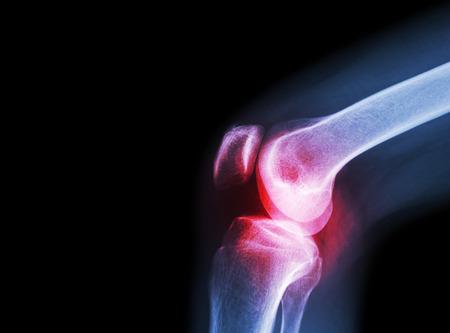Film x-ray del ginocchio con l'artrite (gotta, artrite reumatoide, artrite settica, osteoartrite al ginocchio) e un'area vuota sul lato sinistro Archivio Fotografico - 47040944