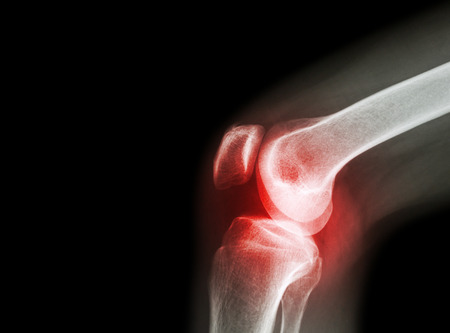 X-ray film kniegewricht met artritis (jicht, reumatoïde artritis, septische artritis, artrose knie) en de lege ruimte aan de linkerkant Stockfoto - 47040946