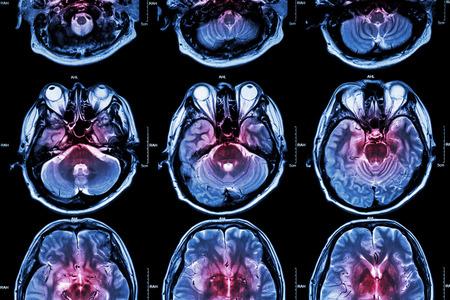 cerebral: Film MRI  Magnetic resonance imaging  of brain  stroke , brain tumor , cerebral infarction , intracerebral hemorrhage    Medical , Health care , Science Background   Cross section of brain