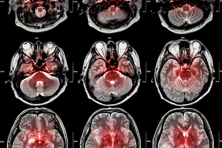 stroke: Film MRI  Magnetic resonance imaging  of brain  stroke , brain tumor , cerebral infarction , intracerebral hemorrhage    Medical , Health care , Science Background   Cross section of brain