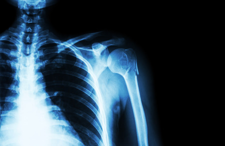 fracture arm: Fracture at neck of humerus ( arm bone ) ( film x-ray left shoulder and blank area at right side ) Stock Photo