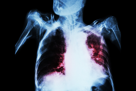 interstitial: Pulmonary Tuberculosis with acute respiratory failure ( Film chest x-ray of old patient show alveolar and interstitial infiltration both lung with endotracheal tube ) due to mycobacterium tuberculosis
