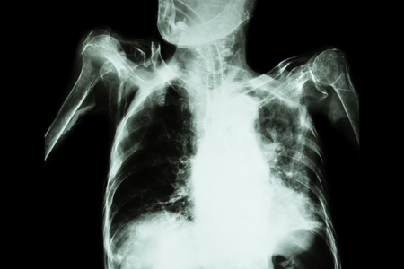 infiltration: Pulmonary Tuberculosis with acute respiratory failure ( Film chest x-ray of old patient show alveolar and interstitial infiltration both lung with endotracheal tube ) due to mycobacterium tuberculosis