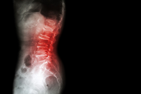 Spondylosis , Spondylolisthesis  ( Film x-ray lumbo - sacral spine show spine collapse , decrease in disc space , bony spur formation ) ( side , lateral view ) and blank area at right side 스톡 콘텐츠
