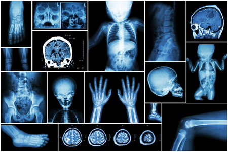 child s: X-ray multiple part of child s body & multiple disease ( stroke , brain tumor , rheumatoid arthritis , sinusitis , gouty arthritis , etc)( skull chest lung heart spine arm hand pelvis leg knee foot ) Stock Photo