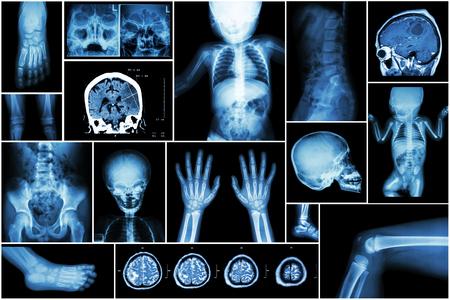 brain disease: X-ray multiple part of child s body & multiple disease ( stroke , brain tumor , rheumatoid arthritis , sinusitis , gouty arthritis , etc)( skull chest lung heart spine arm hand pelvis leg knee foot ) Stock Photo