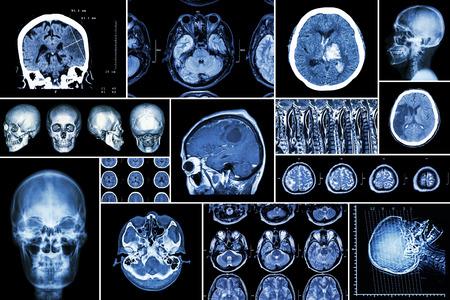 Conjunto, Colección de la enfermedad cerebral (infarto cerebral, accidente cerebrovascular hemorrágico, tumor cerebral, hernia de disco con compresión de la médula espinal, etc.) (tomografía computarizada, resonancia magnética, MRT) (Neurología y sistema nervioso) Foto de archivo - 47614929
