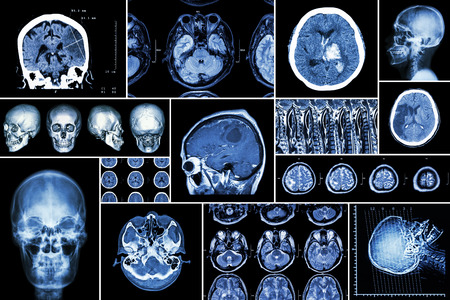 neurological: Set , Collection of brain disease ( Cerebral infarction , Hemorrhagic stroke , Brain tumor , Disc herniation with spinal cord compression ,etc)( CT scan , MRI , MRT )( Neurology and Nervous system )