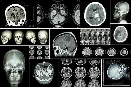 cerebro blanco y negro: Conjunto, Colección de la enfermedad cerebral (infarto cerebral, accidente cerebrovascular hemorrágico, tumor cerebral, hernia de disco con compresión de la médula espinal, etc.) (tomografía computarizada, resonancia magnética, MRT) (Neurología y sistema nervioso) Foto de archivo
