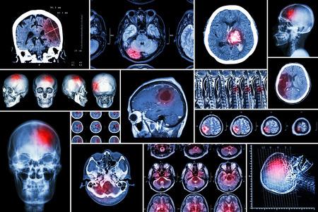 Conjunto, Colección de la enfermedad cerebral (infarto cerebral, accidente cerebrovascular hemorrágico, tumor cerebral, hernia de disco con compresión de la médula espinal, etc.) (tomografía computarizada, resonancia magnética, MRT) (Neurología y sistema nervioso)