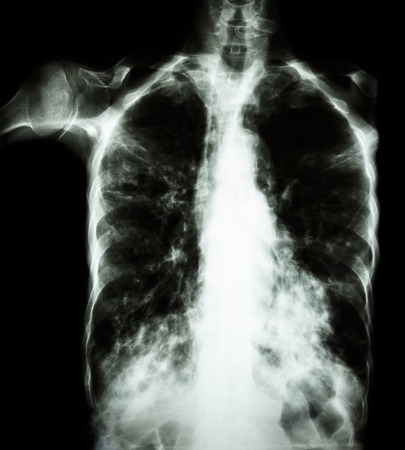 interstitial: Pulmonary Tuberculosis  ( film chest x-ray :  interstitial infiltrate both lung due to Mycobacterium tuberculosis infection )
