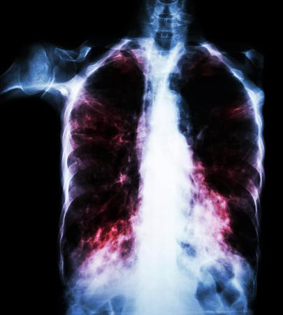 alveolos pulmonares: La tuberculosis pulmonar (película de radiografía de tórax: infiltrado intersticial pulmonar, tanto debido a la infección por Mycobacterium tuberculosis) Foto de archivo