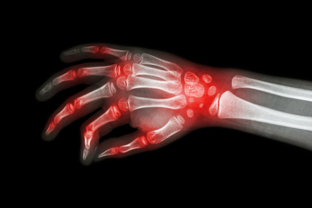 Reumatoïde artritis, Jichtartritis (Film x-ray hand van het kind met artritis op meerdere gezamenlijke) Stockfoto - 49969190