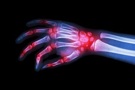 artritis: La artritis reumatoide, la artritis gotosa (película de rayos x mano del niño con artritis en la articulación múltiple)