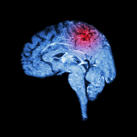 brain stem: Magnetic Resonance Imaging ( MRI ) of brain and Stroke ( Medical , science and healthcare concept ) Stock Photo