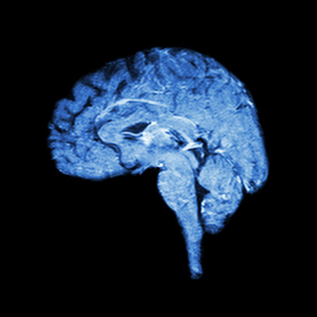 Magnetic Resonance Imaging ( MRI ) of brain  ( Medical , science and healthcare concept )