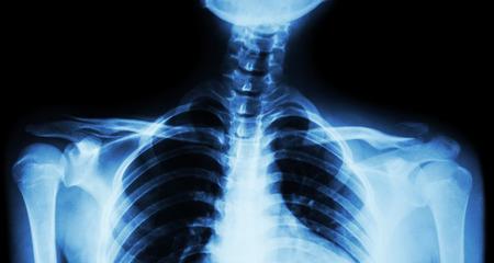 distal: Película de rayos X tanto clavícula AP (vista frontal): mostrar la fractura distal de la clavícula izquierda Foto de archivo