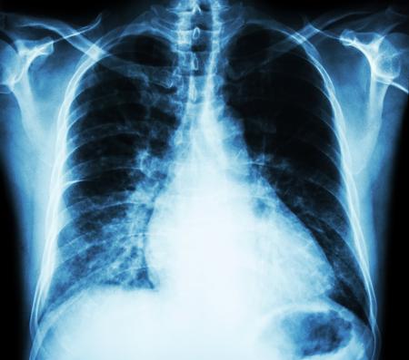 L'insuffisance cardiaque (film de radiographie PA debout: show cardiomégalie et interstitielle infiltrer les deux poumons)