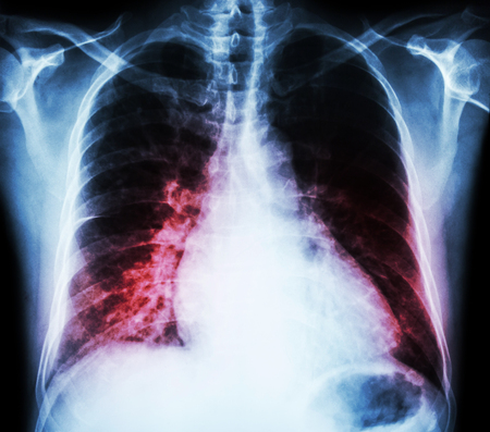 dyspnea: Heart failure  ( film x-ray chest PA upright : show cardiomegaly and interstitial infiltrate both lung ) Stock Photo