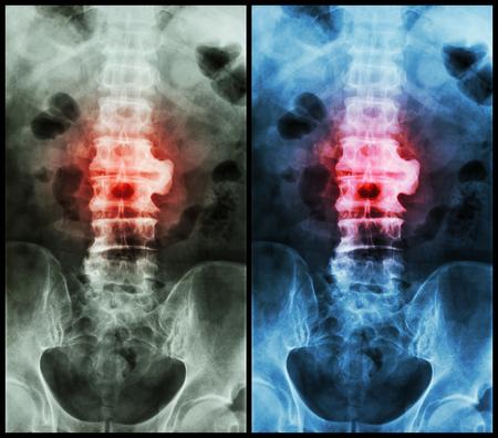 sacral: Spondylosis ( film x-ray lumbo - sacral spine : show spondylosis at L2-3 )