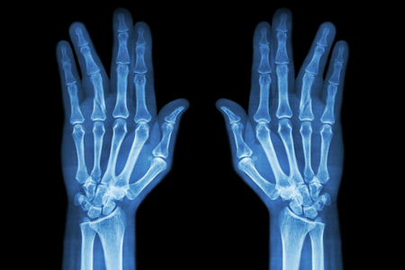 eje de la fractura de la falange proximal del dedo anular (película de rayos X tanto la mano AP) Foto de archivo