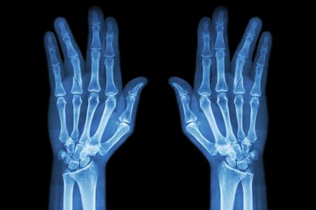 fractura: eje de la fractura de la falange proximal del dedo anular (pel�cula de rayos X tanto la mano AP)