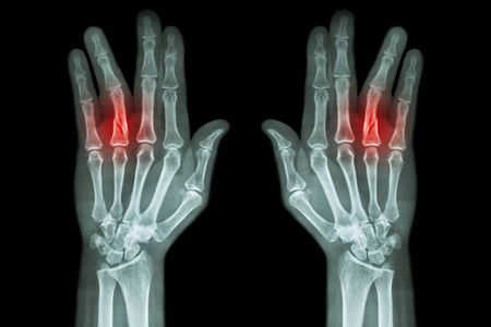 wrist pain: Fracture shaft of proximal phalange of ring finger ( film x-ray both hand AP )
