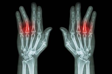 ring finger: Fracture shaft of proximal phalange of ring finger ( film x-ray both hand AP )