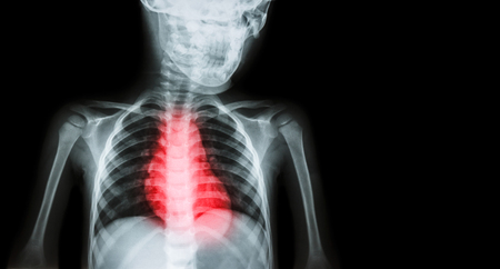 myocardial: Ischemic Heart Disease , Myocardial Infarction ( MI ) ( Film x-ray body of human with heart disease and blank area at right side ) ( Cardiopulmonary resuscitate and Cardiovascular concept ) Stock Photo