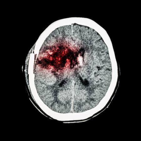 hemorragia: TC del cerebro: mostrar la hemorragia ganglios basales derecha de edad con edema cerebral (estado de post craneotom�a) (accidente cerebrovascular hemorr�gico)