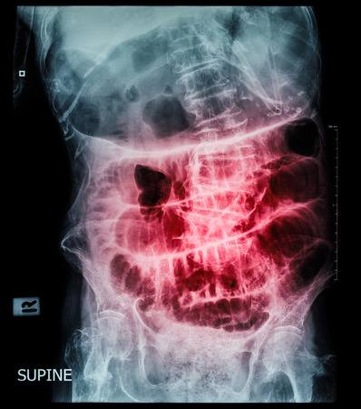 enteritis: Small bowel obstruction ( film x-ray abdomen ( supine position ) : show small bowel and stomach dilate ) ( step ladder pattern )