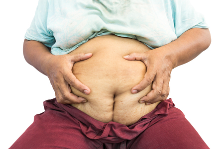 grasp: asian old fat woman grasp her abdomen ( surgical scar at lower abdomen ( post cesarean section )  ( isolated background ) Stock Photo
