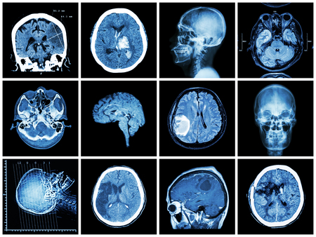 infarct: Collection of brain disease ( CT scan and MRI of brain : show cerebral infarct , intracerebral hemorrhage , brain tumor , basal ganglia hemorrhage ( status post craniotomy ) ) ( health care concept )