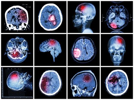 hemorragia: Colecci�n de enfermedad cerebral (tomograf�a computarizada y la resonancia magn�tica del cerebro: mostrar infarto cerebral, hemorragia intracerebral, tumor cerebral, hemorragia ganglios basales (estado de post craneotom�a)) (el concepto del cuidado de la salud)