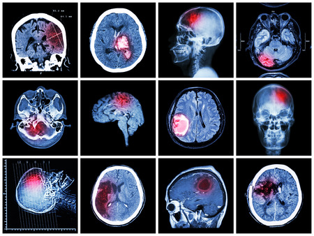 cat scan: Collection of brain disease ( CT scan and MRI of brain : show cerebral infarct , intracerebral hemorrhage , brain tumor , basal ganglia hemorrhage ( status post craniotomy ) ) ( health care concept )