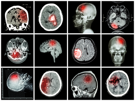 hemorragia: Collection of brain disease ( CT scan and MRI of brain : show cerebral infarct , intracerebral hemorrhage , brain tumor , basal ganglia hemorrhage ( status post craniotomy ) ) ( health care concept )