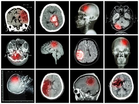 Collection of brain disease ( CT scan and MRI of brain : show cerebral infarct , intracerebral hemorrhage , brain tumor , basal ganglia hemorrhage ( status post craniotomy ) ) ( health care concept )