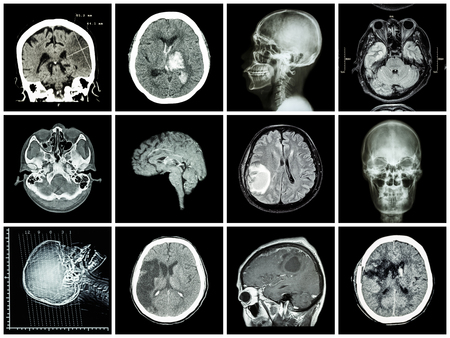 scan: Collection of brain disease ( CT scan and MRI of brain : show cerebral infarct , intracerebral hemorrhage , brain tumor , basal ganglia hemorrhage ( status post craniotomy ) ) ( health care concept )