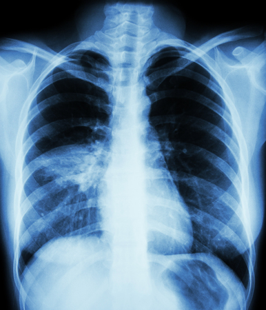 pneumonia: Pneumonia ( film chest x-ray show alveolar infiltrate at right middle lung ) ( image for pulmonary tuberculosis , Mers-CoV , SARS )