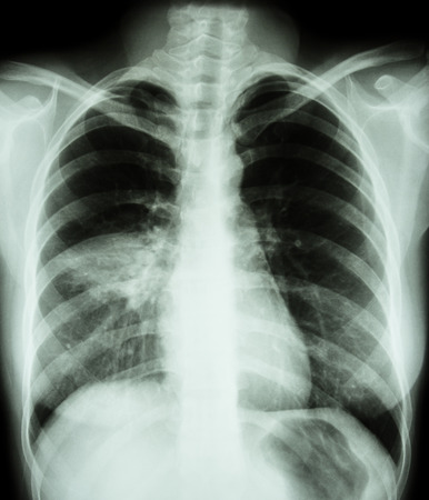 Pneumonia ( film chest x-ray show alveolar infiltrate at right middle lung ) ( image for pulmonary tuberculosis , Mers-CoV , SARS )