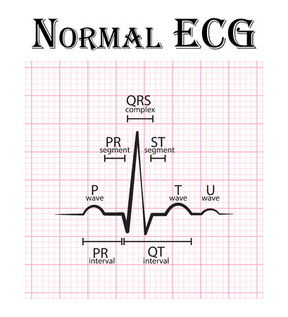 通常心電図 (心電図) (P 波、PR セグメント、PR 間隔、qrs、qt 延長、st、T 波、U 波)