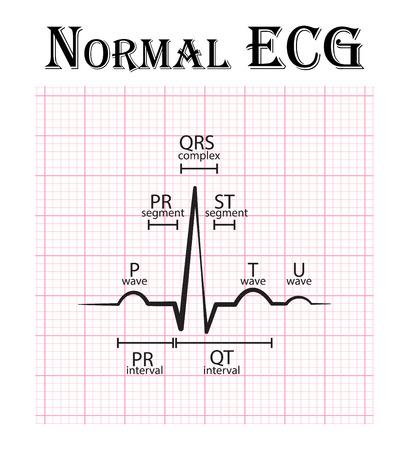 ECG normale (elettrocardiogramma) (onda P, segmento PR, intervallo PR, QRS complesso, QT, del tratto ST, onda T, U onda)