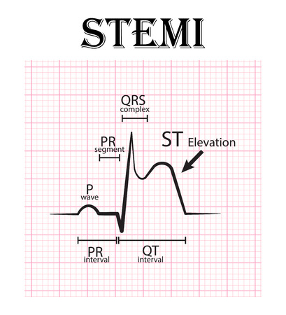 ECG of ST elevation myocardial infarction ( STEMI ) and detail of ECG ( P wave , PR segment , PR interval , QRS complex , QT interval , ST elevate , T wave )  Acute coronary syndrome , angina pectoris Ilustracja