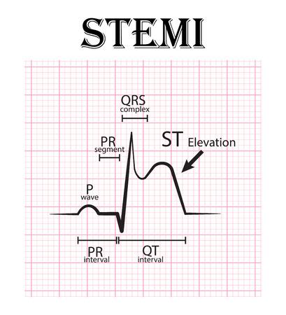 ECG of ST elevation myocardial infarction ( STEMI ) and detail of ECG ( P wave , PR segment , PR interval , QRS complex , QT interval , ST elevate , T wave )  Acute coronary syndrome , angina pectoris Stock Illustratie