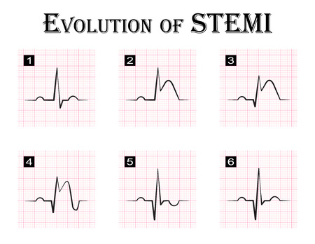 infarction: ECG of evolution ( step by step ) of STEMI ( ST elevation myocardial infarction ) Acute coronary syndrome , angina pectoris