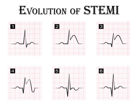 ECG of evolution ( step by step ) of STEMI ( ST elevation myocardial infarction ) Acute coronary syndrome , angina pectoris