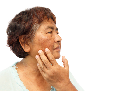 old rural woman with blemish , acne , mole and wrinkle on her face ( isolated background and blank area at right side ) ( anti-aging concept ) Stockfoto