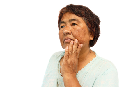 alte ländliche Frau mit Makel, Akne, Maulwurf und Falten auf ihrem Gesicht (isoliert Hintergrund und leeren Bereich auf der linken Seite) (Anti-Aging-Konzept)